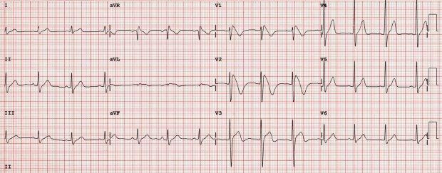 heart-ecg1.jpg